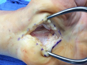 open carpal tunnel procedure pic 22814
