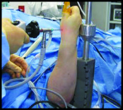 Arthroscopic CMC Surgery